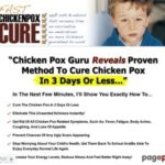 How To Cure Chicken Pox In 3 Days Or Less
